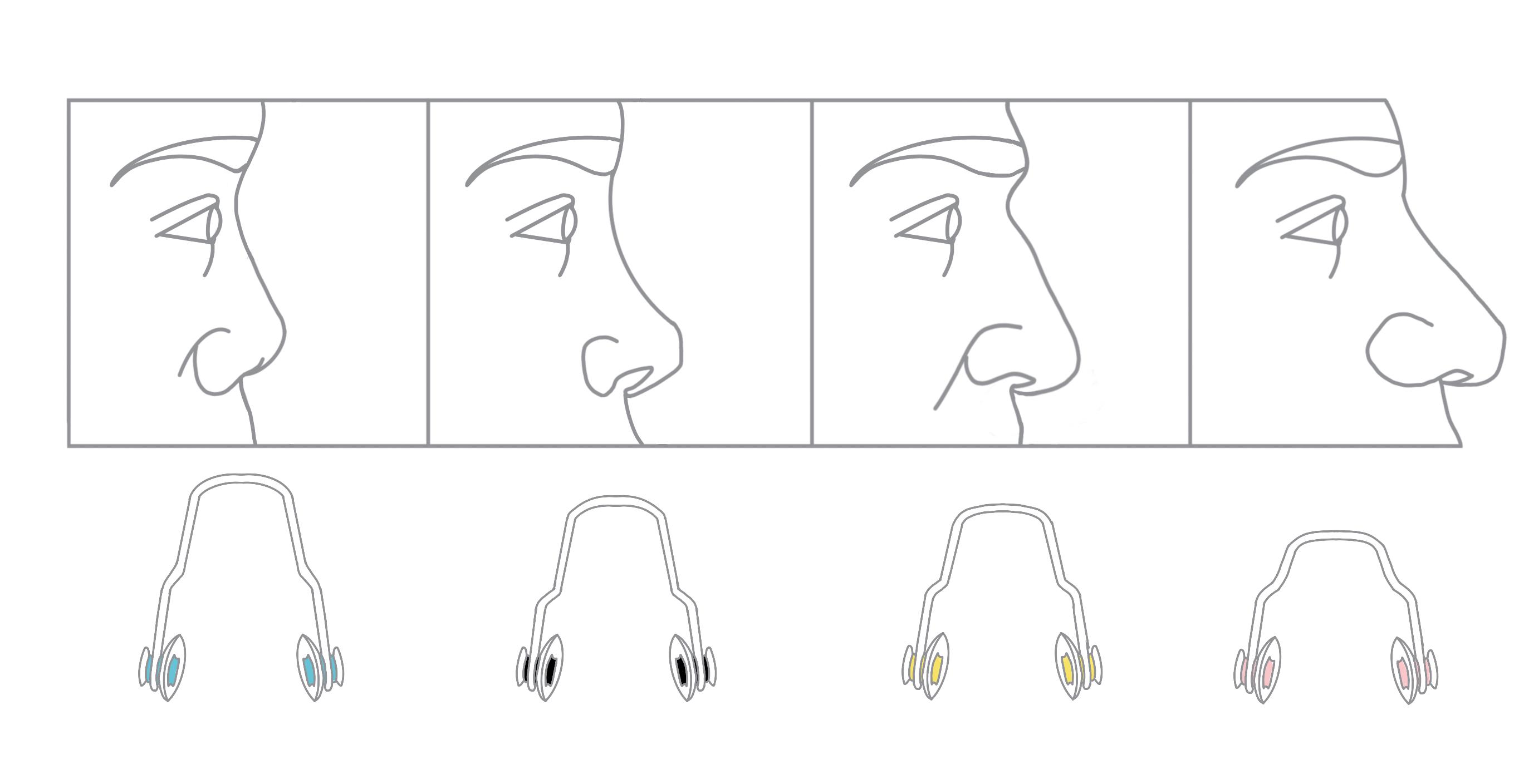 Nosepiece-nose general trend